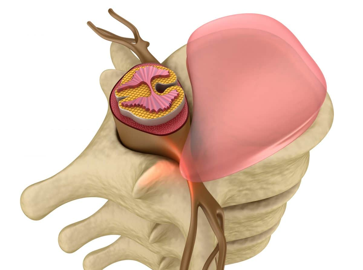 computer graphic of herniated disc